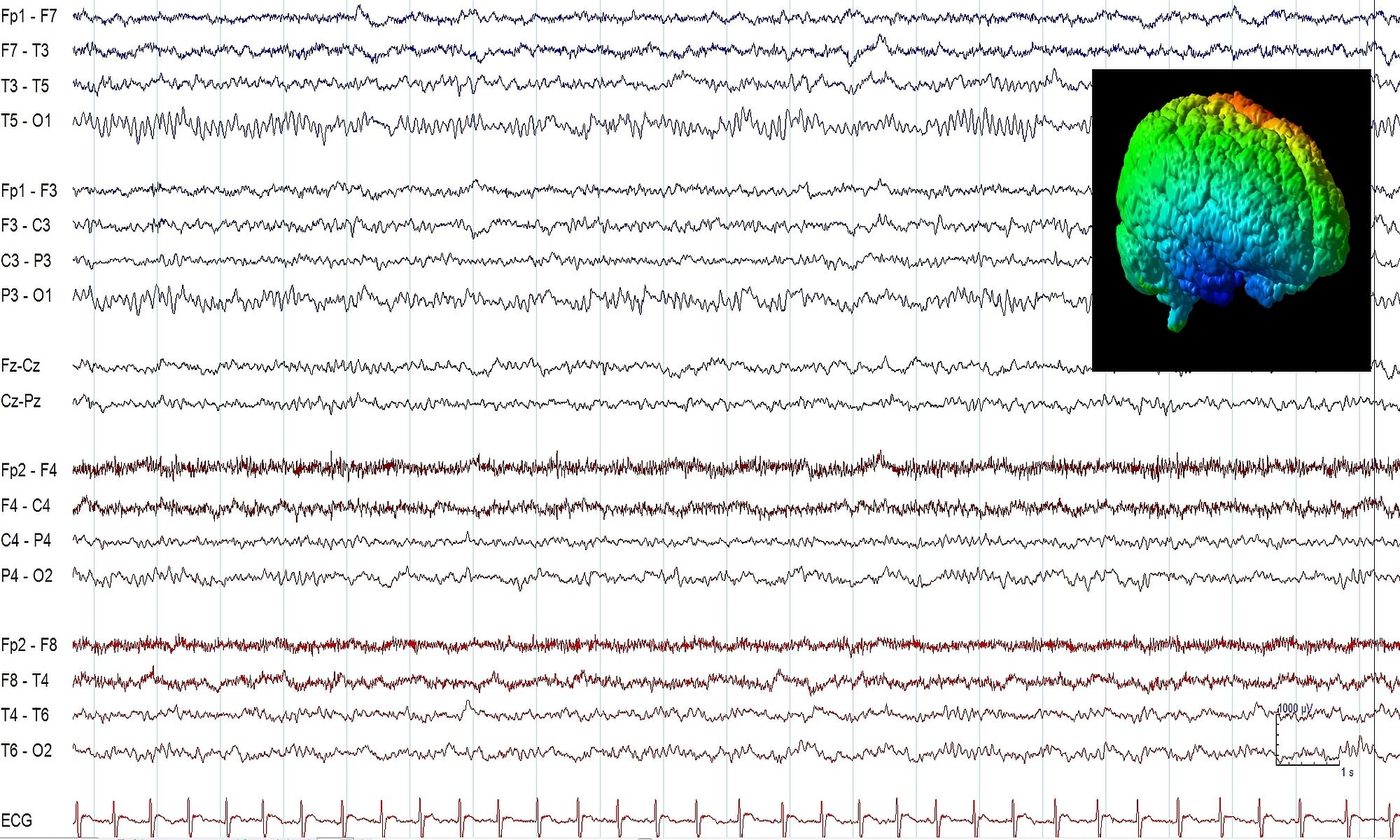 EEG Elektroencefalografia